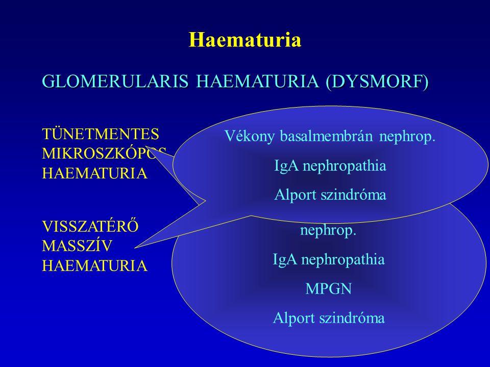 Haematuria GLOMERULARIS HAEMATURIA (DYSMORF)