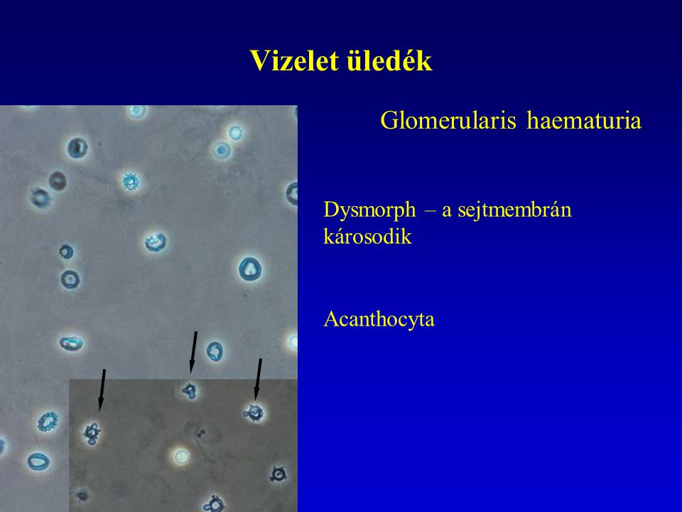 Vizelet üledék Glomerularis haematuria