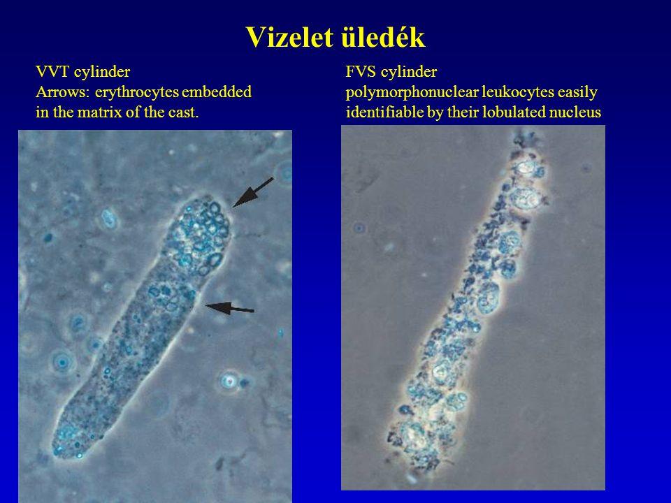 Vizelet üledék VVT cylinder Arrows: erythrocytes embedded