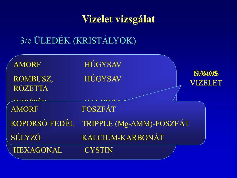 Vizelet vizsgálat 3/c ÜLEDÉK (KRISTÁLYOK) AMORF HÚGYSAV
