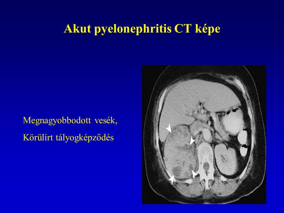 Akut pyelonephritis CT képe