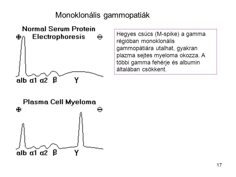 Monoklonális gammopatiák