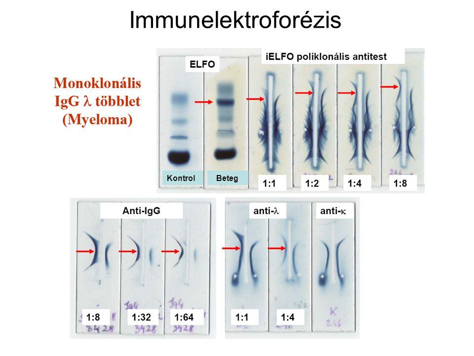 Immunelektroforézis Kontrol Beteg