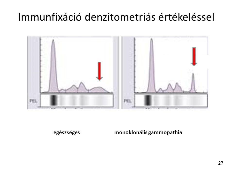 Immunfixáció denzitometriás értékeléssel