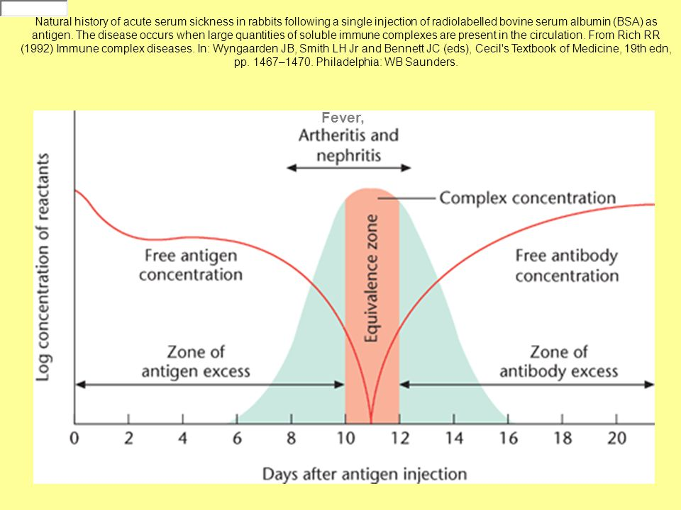 Natural history of acute serum sickness in rabbits following a single injection of radiolabelled bovine serum albumin (BSA) as antigen. The disease occurs when large quantities of soluble immune complexes are present in the circulation. From Rich RR (1992) Immune complex diseases. In: Wyngaarden JB, Smith LH Jr and Bennett JC (eds), Cecil s Textbook of Medicine, 19th edn, pp. 1467–1470. Philadelphia: WB Saunders.
