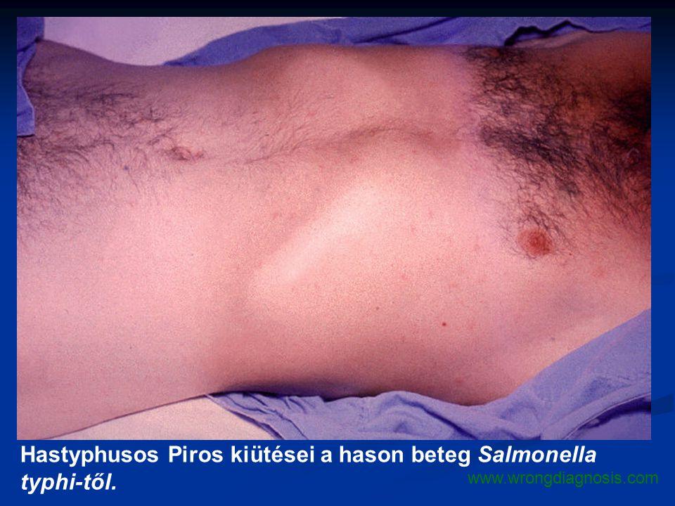 Hastyphusos Piros kiütései a hason beteg Salmonella typhi-től.