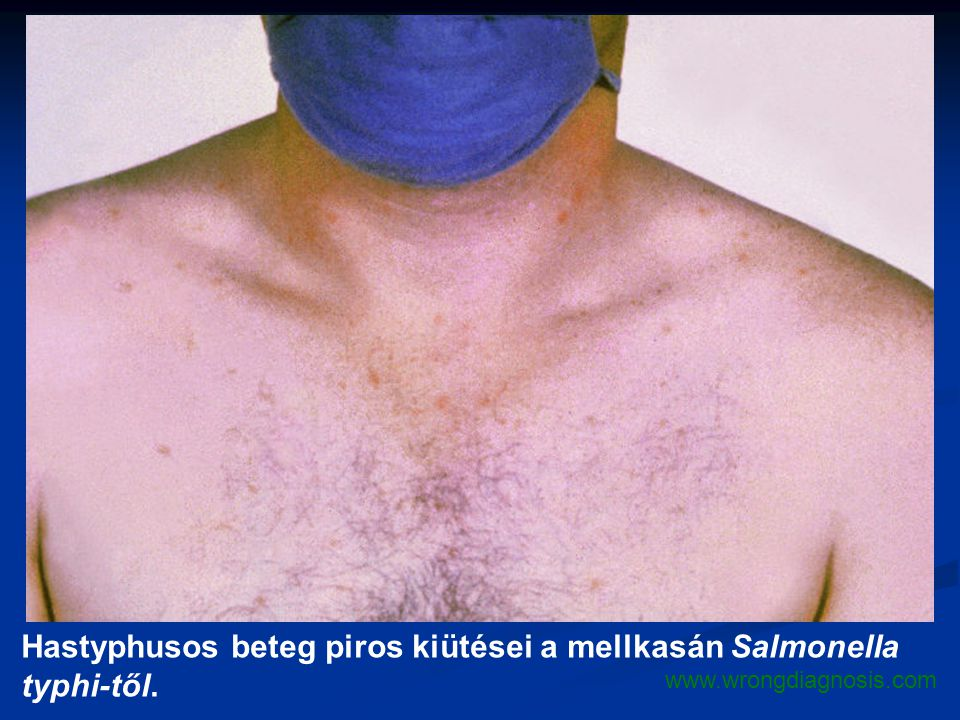 Hastyphusos beteg piros kiütései a mellkasán Salmonella typhi-től.