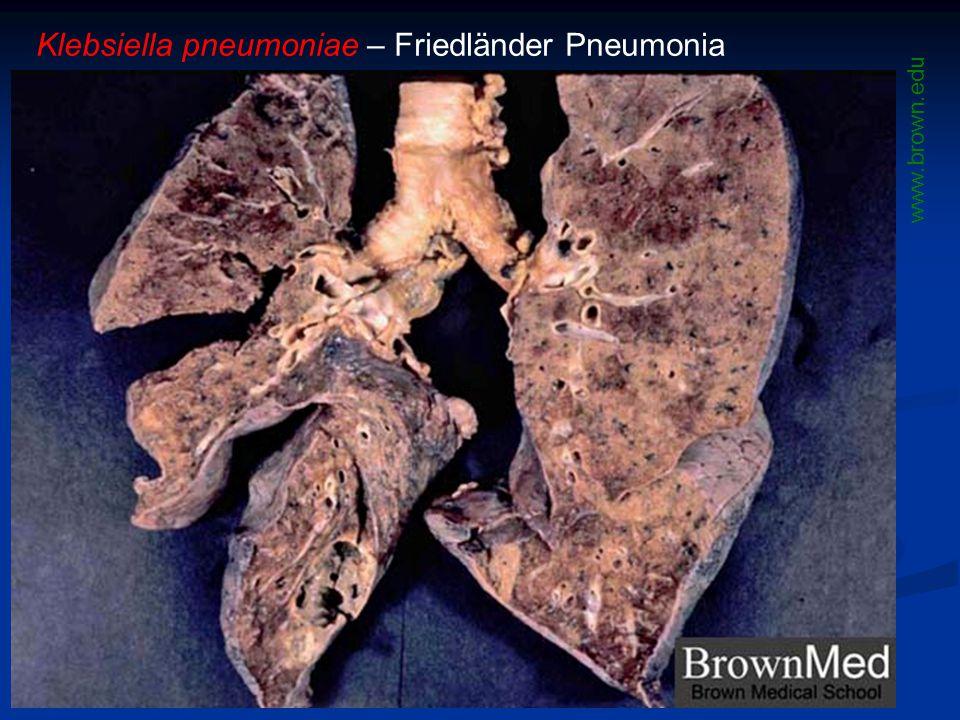 Klebsiella pneumoniae – Friedländer Pneumonia