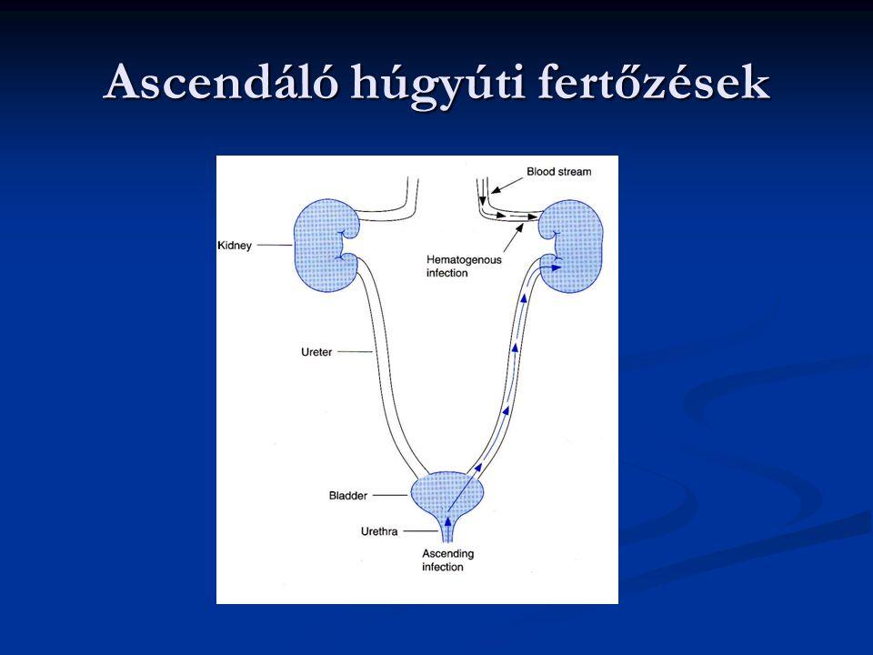 Ascendáló húgyúti fertőzések