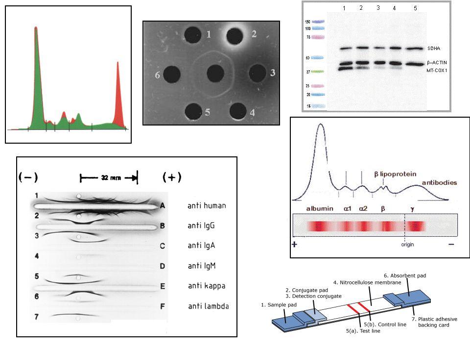 Myeloma multiplex: monoklonális gammaglobulin szaporulat diagnosztizálása szérum elektroforézissel, immunelektroforézissel, immunfixációval
