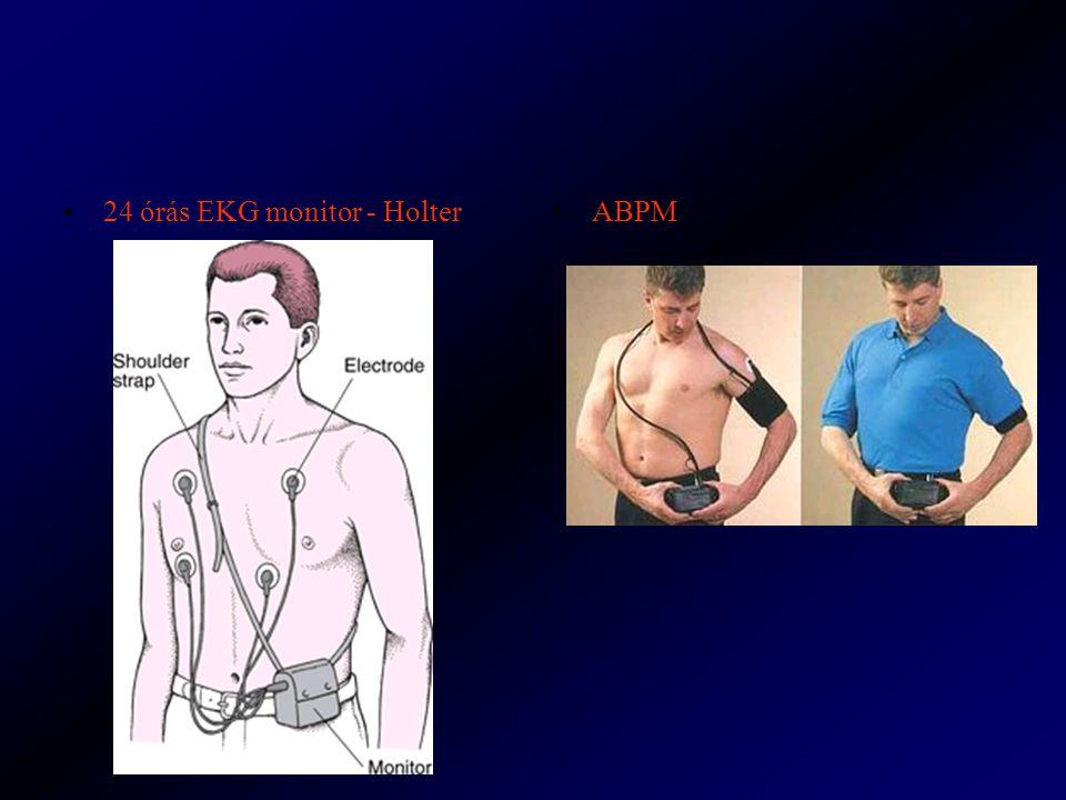 24 órás EKG monitor - Holter