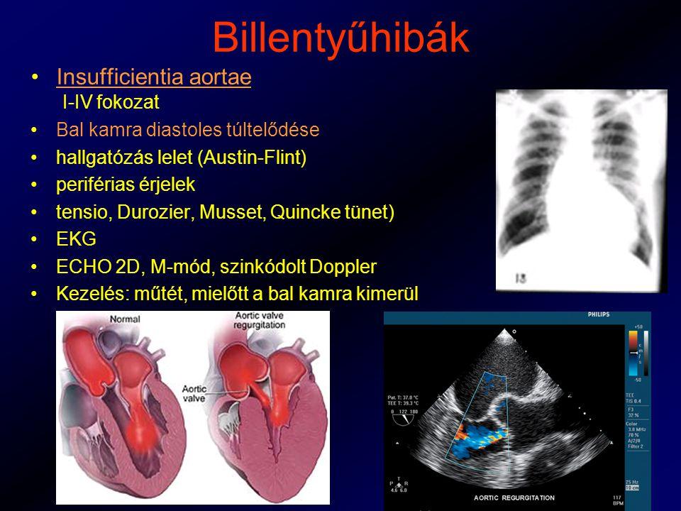 Billentyűhibák Insufficientia aortae I-IV fokozat