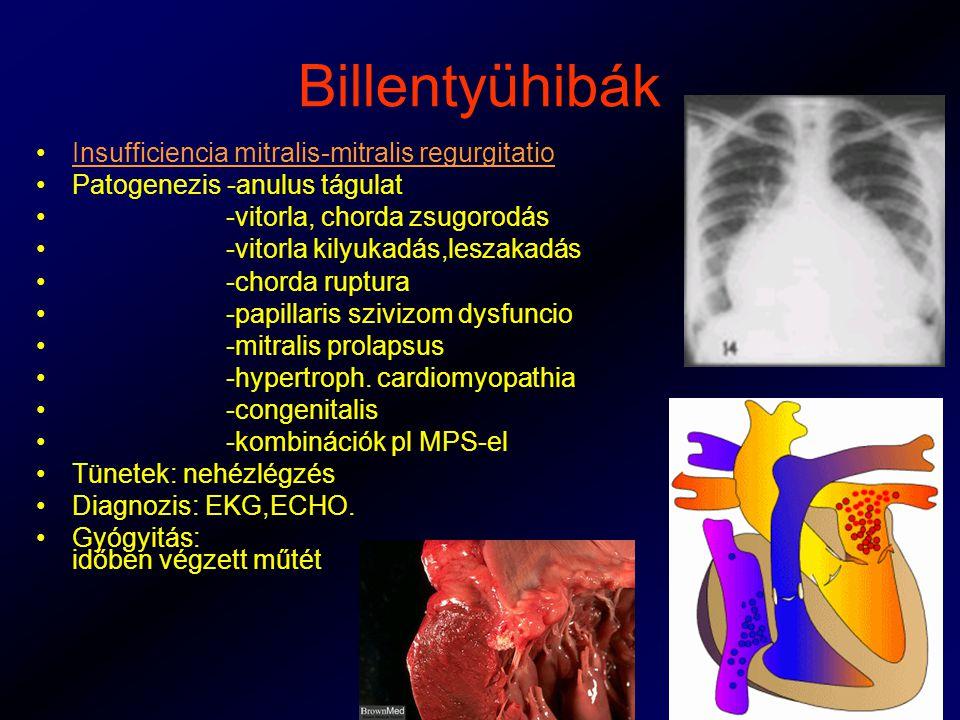 Billentyühibák Insufficiencia mitralis-mitralis regurgitatio