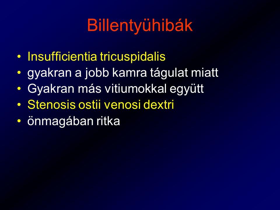 Billentyühibák Insufficientia tricuspidalis