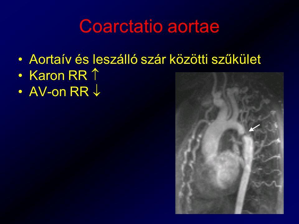 Coarctatio aortae Aortaív és leszálló szár közötti szűkület Karon RR 