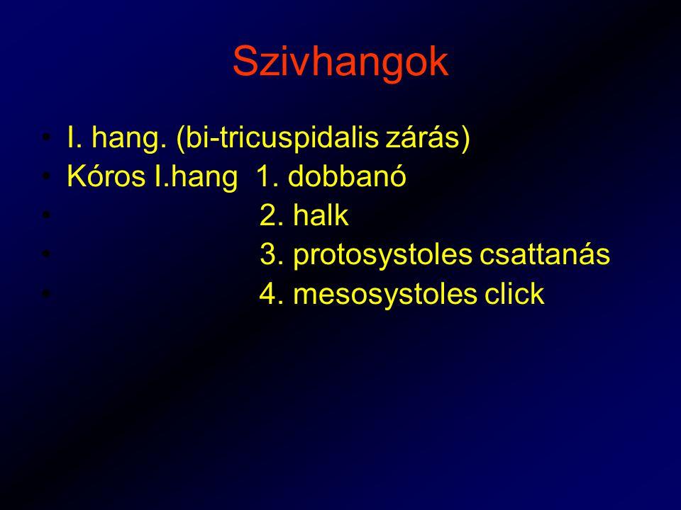 Szivhangok I. hang. (bi-tricuspidalis zárás) Kóros I.hang 1. dobbanó