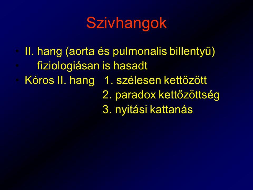 Szivhangok II. hang (aorta és pulmonalis billentyű)