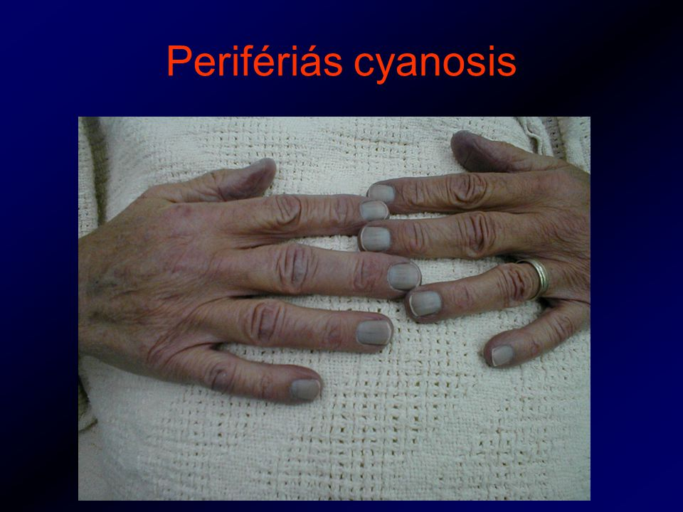 Perifériás cyanosis