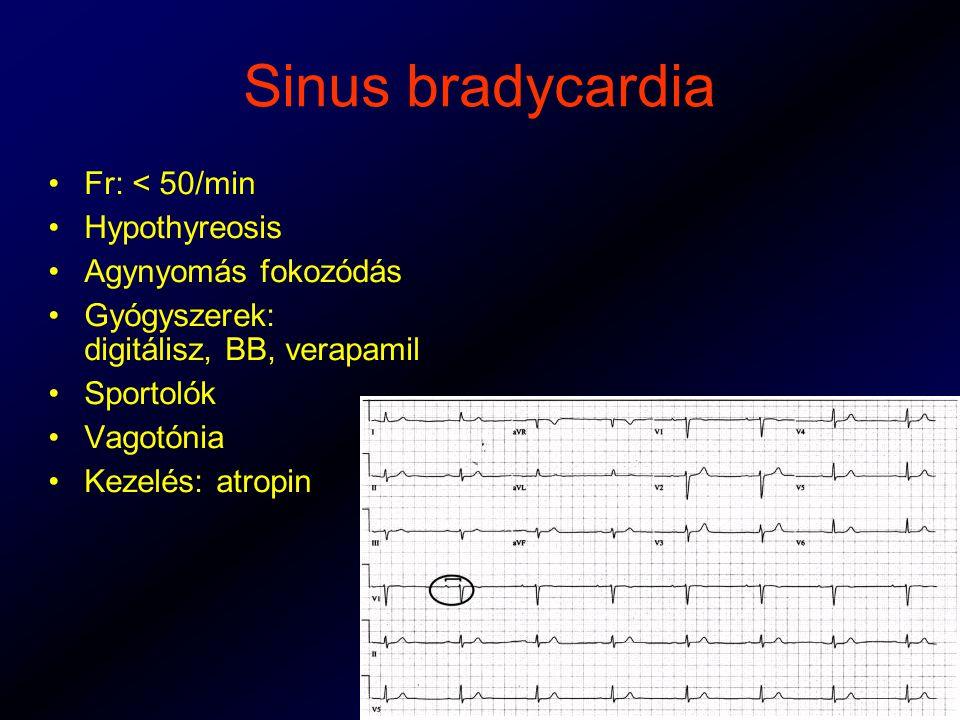 Sinus bradycardia Fr: < 50/min Hypothyreosis Agynyomás fokozódás