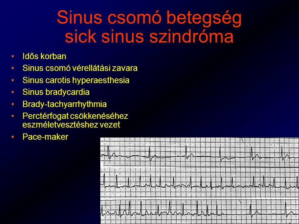 Sinus csomó betegség sick sinus szindróma