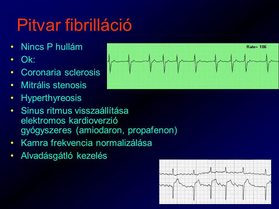 Pitvar fibrilláció Nincs P hullám Ok: Coronaria sclerosis