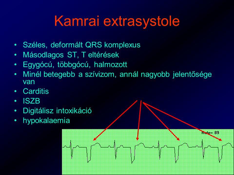 Kamrai extrasystole Széles, deformált QRS komplexus