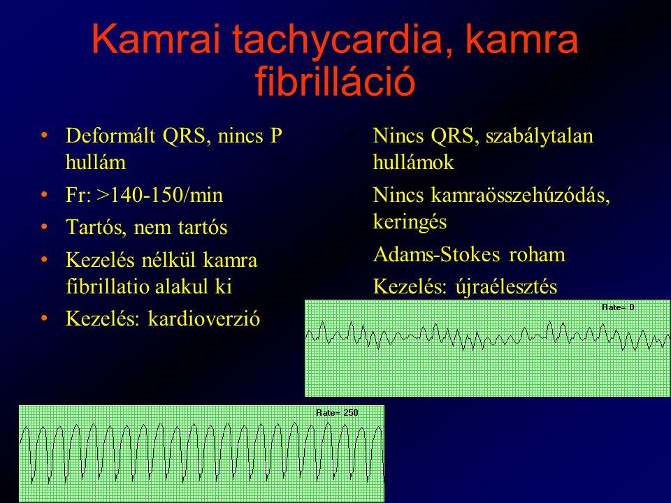 Kamrai tachycardia, kamra fibrilláció