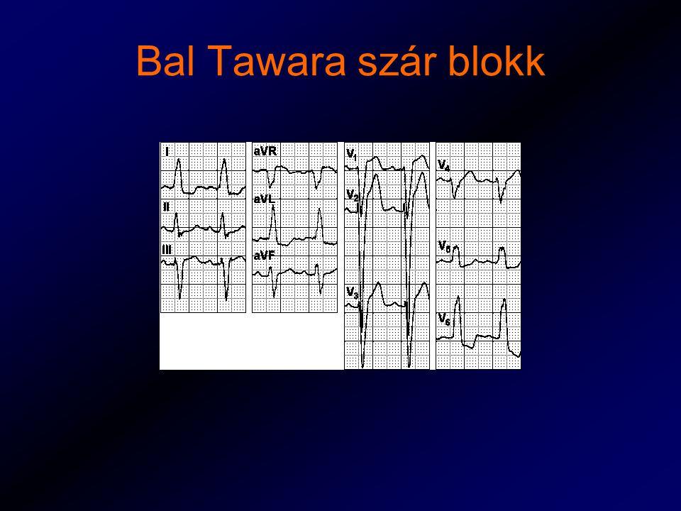 Bal Tawara szár blokk