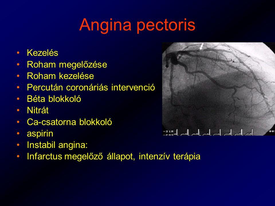 Angina pectoris Kezelés Roham megelőzése Roham kezelése