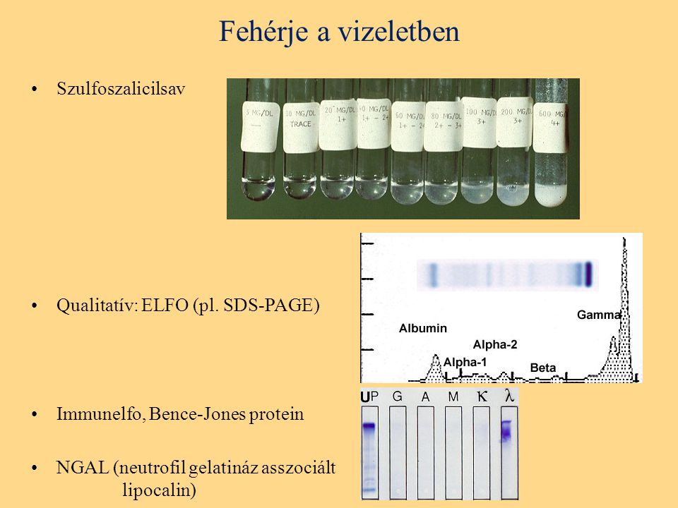 Fehérje a vizeletben Szulfoszalicilsav Qualitatív: ELFO (pl. SDS-PAGE)