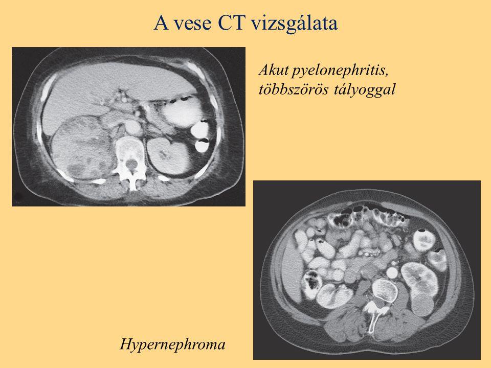 A vese CT vizsgálata Akut pyelonephritis, többszörös tályoggal