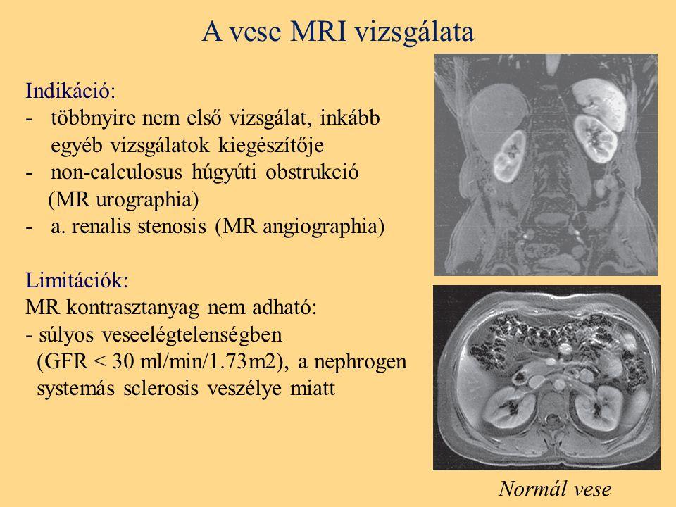 A vese MRI vizsgálata Indikáció: