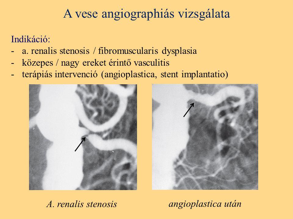 A vese angiographiás vizsgálata