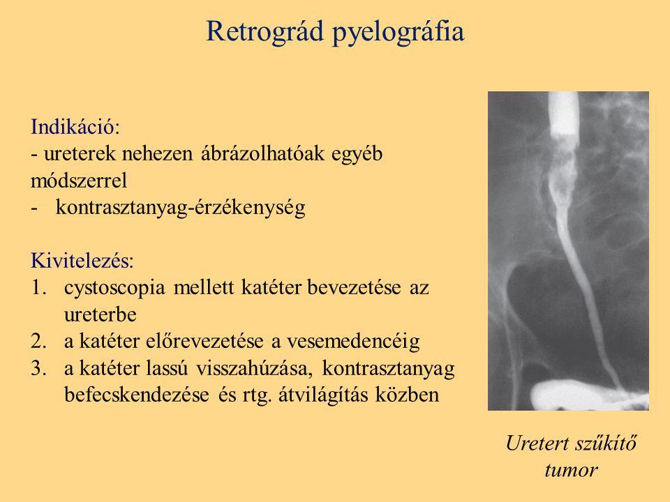Retrográd pyelográfia