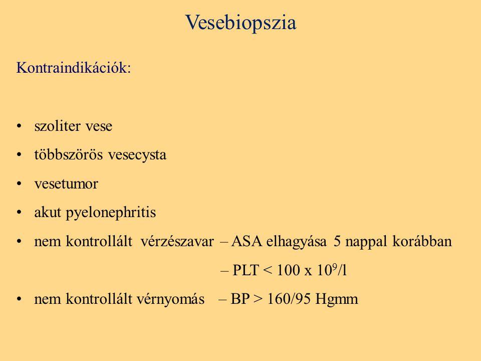 Vesebiopszia Kontraindikációk: szoliter vese többszörös vesecysta