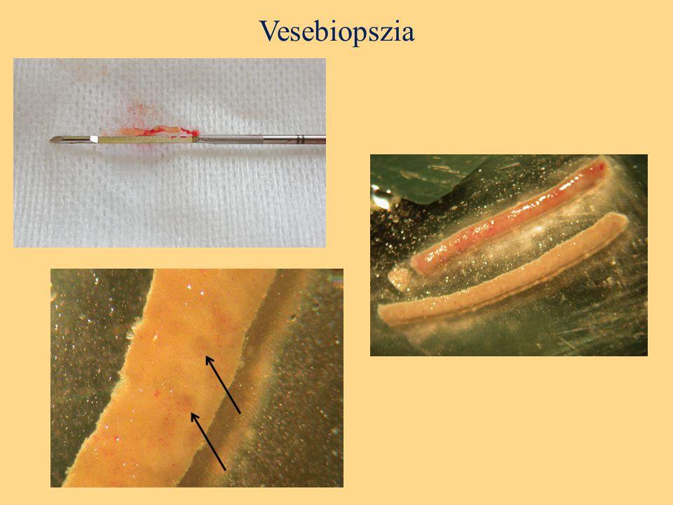 Vesebiopszia