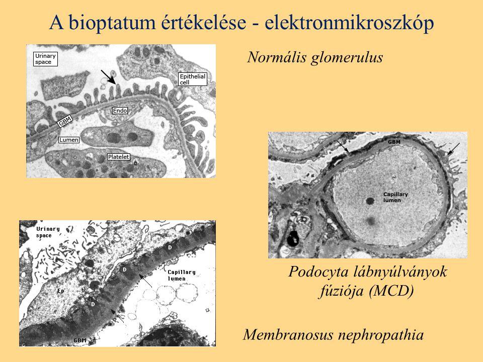 A bioptatum értékelése - elektronmikroszkóp