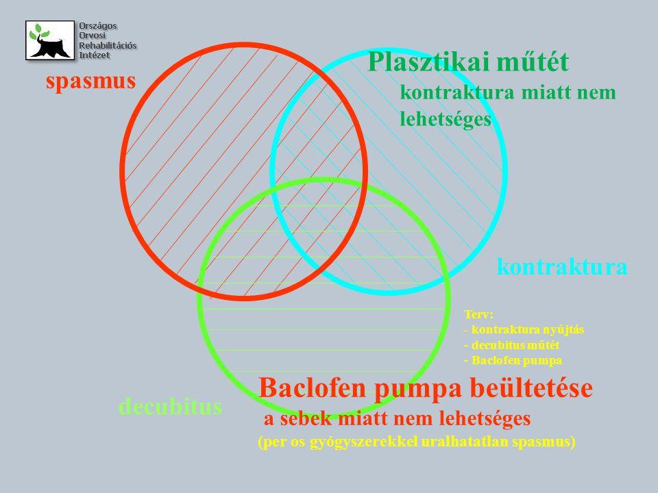 Baclofen pumpa beültetése
