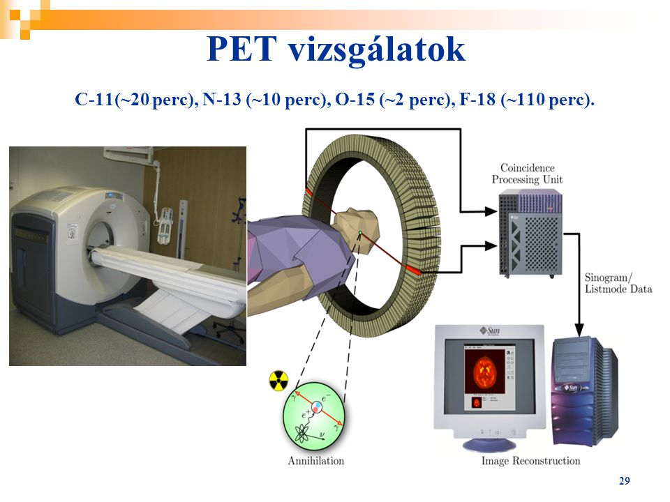 PET vizsgálatok C-11(~20 perc), N-13 (~10 perc), O-15 (~2 perc), F-18 (~110 perc).