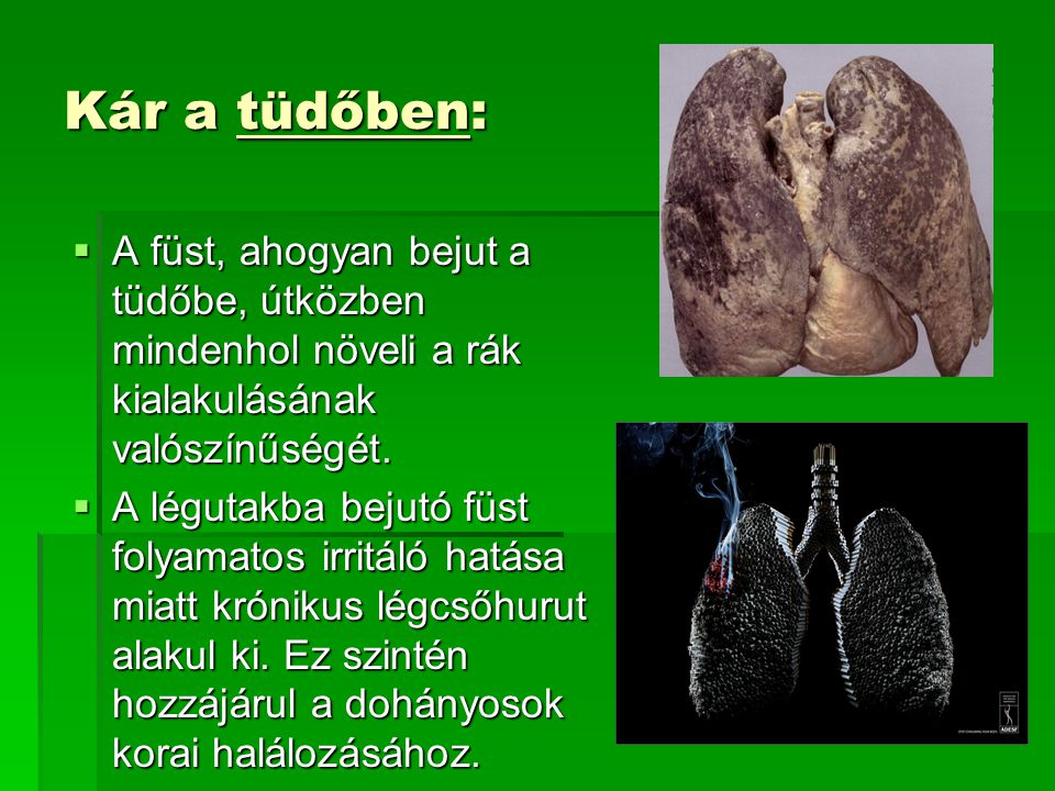 Kár a tüdőben: A füst, ahogyan bejut a tüdőbe, útközben mindenhol növeli a rák kialakulásának valószínűségét.
