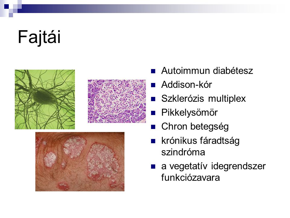 Fajtái Autoimmun diabétesz Addison-kór Szklerózis multiplex