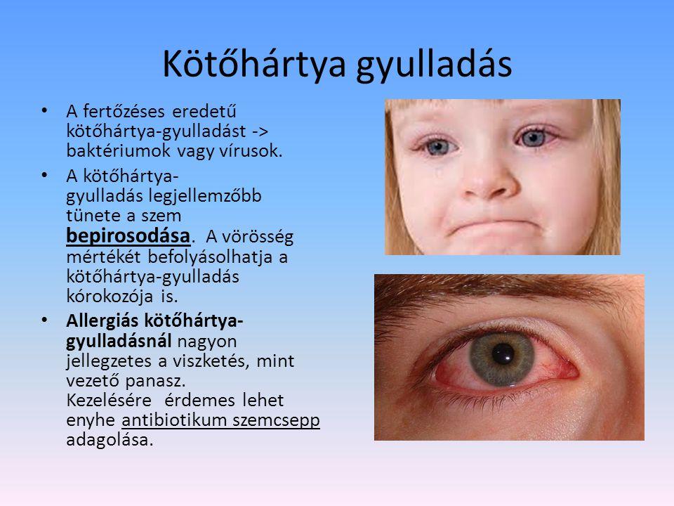 Kötőhártya gyulladás A fertőzéses eredetű kötőhártya-gyulladást -> baktériumok vagy vírusok.
