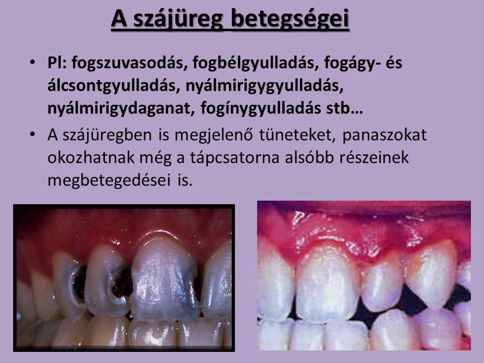 A szájüreg betegségei Pl: fogszuvasodás, fogbélgyulladás, fogágy- és álcsontgyulladás, nyálmirigygyulladás, nyálmirigydaganat, fogínygyulladás stb…