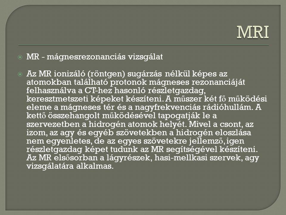 MRI MR - mágnesrezonanciás vizsgálat