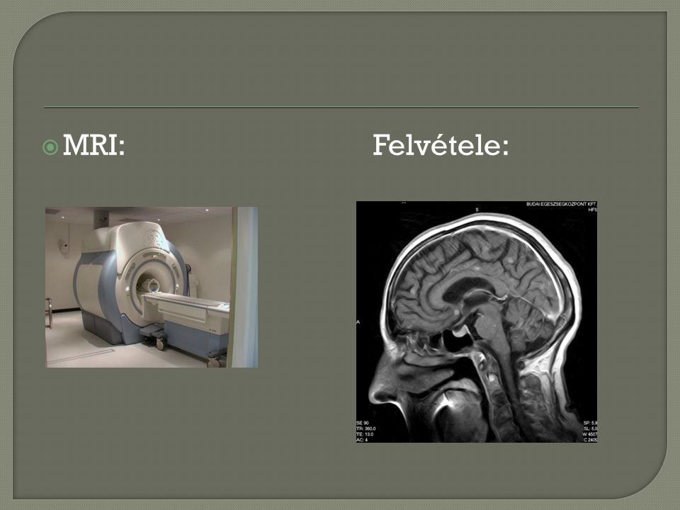 MRI: Felvétele: