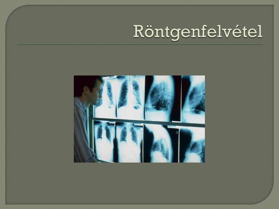 Röntgenfelvétel