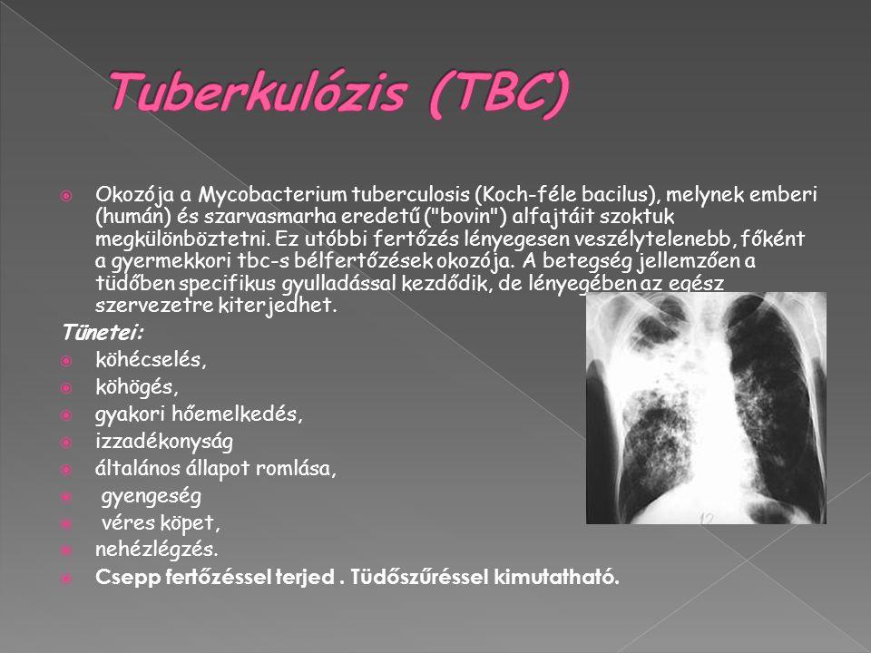 Tuberkulózis (TBC)