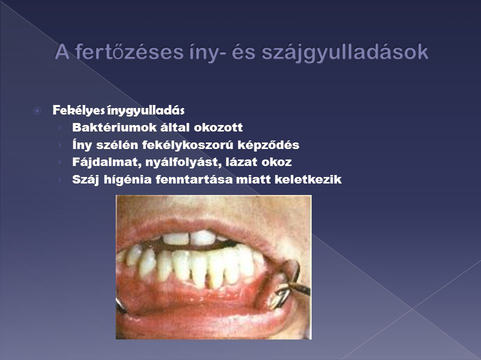 A fertőzéses íny- és szájgyulladások