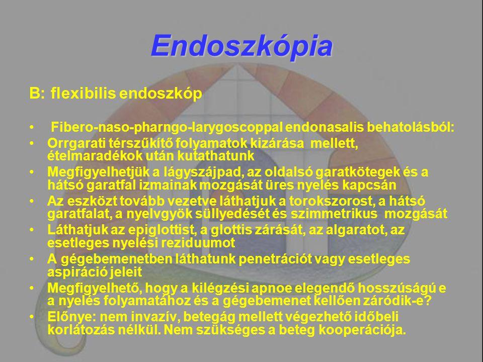 Endoszkópia B: flexibilis endoszkóp