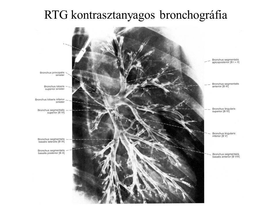 RTG kontrasztanyagos bronchográfia